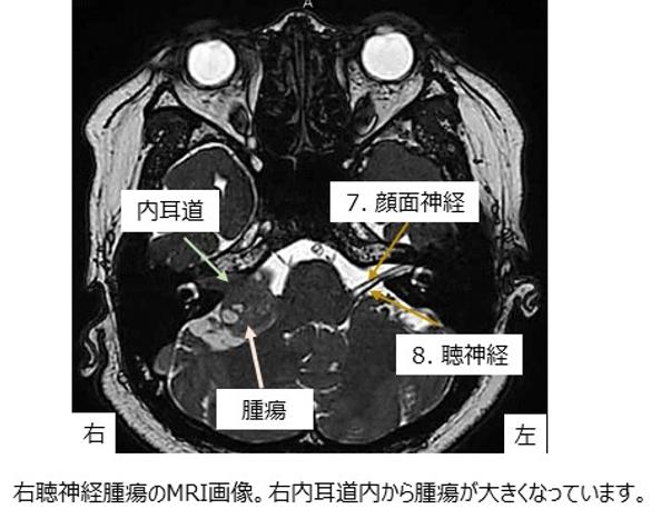 和泉市立総合医療センター | 脳神経外科 | 脳腫瘍(良性腫瘍)
